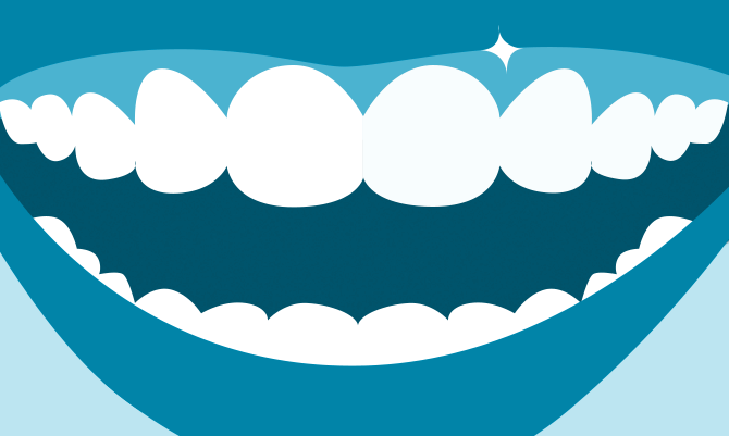 perfekt leende med tandimplantat