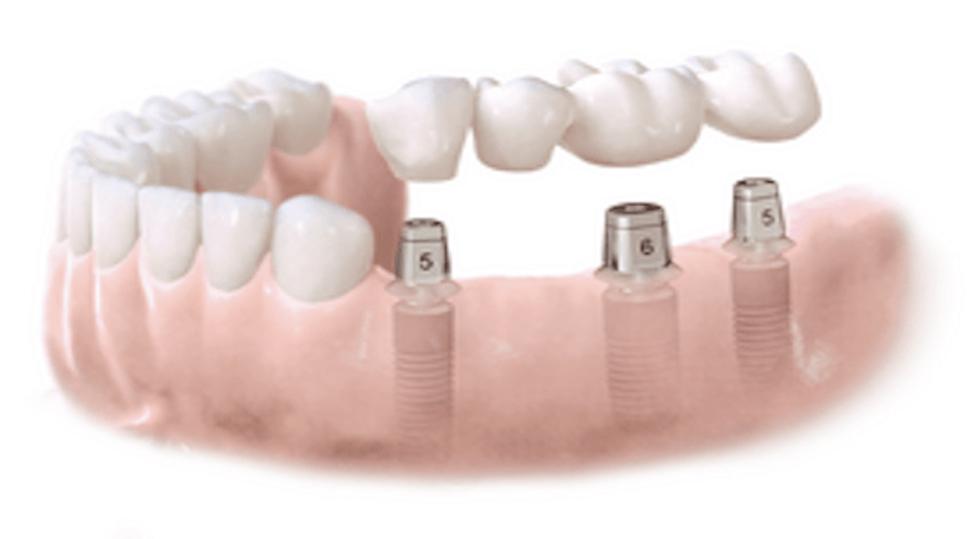 Vilket implantat ska jag välja?