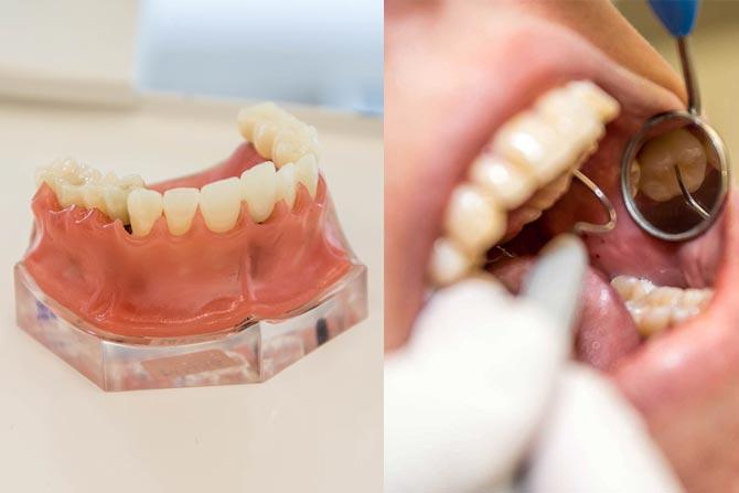Därför ska du välja tandimplantat