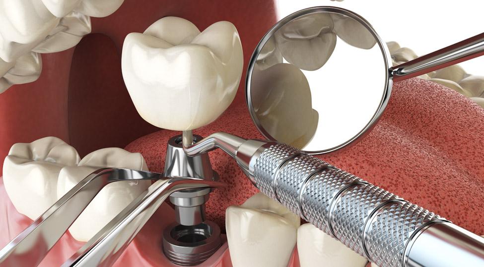 Tandimplantat - så går det till